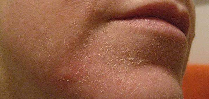 16 Recipe for dry skin treatment